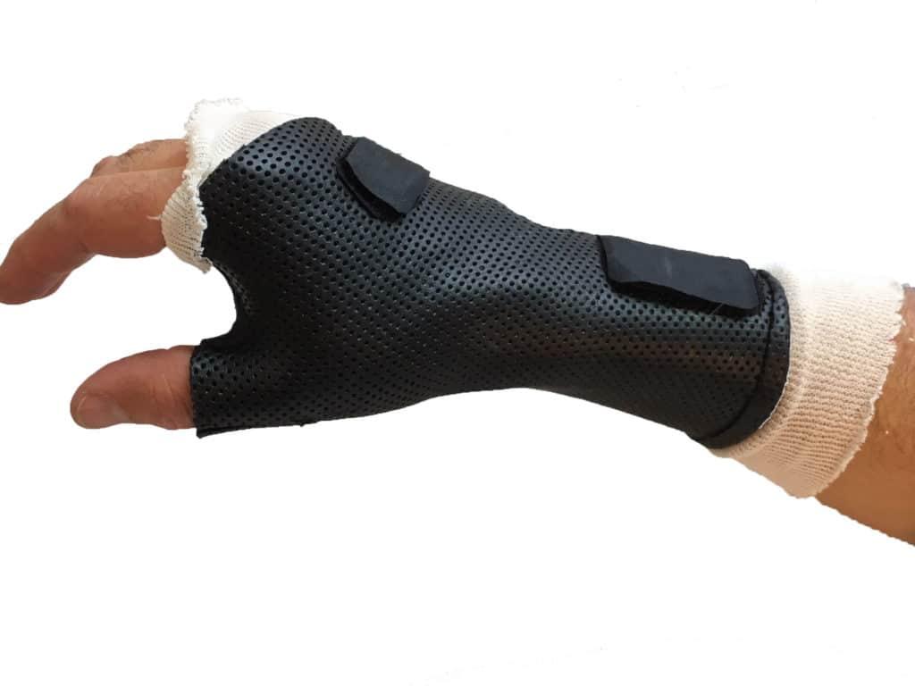 attelle traumatiques de main thermoformée sur-mesure main attelle traumatique