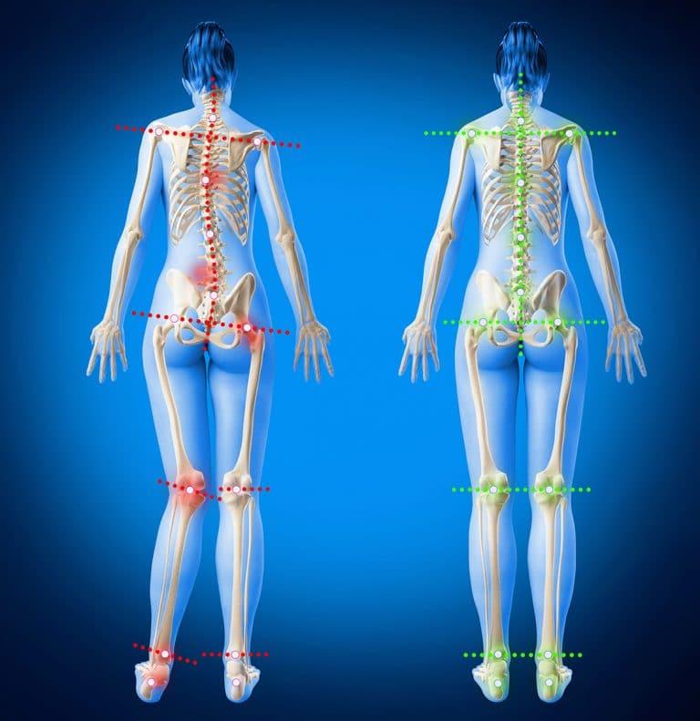 image-semelles-orthopédiques-dos-douleurs-redressement-déséquilibre