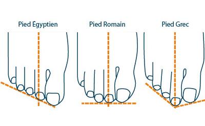 typologie des pieds