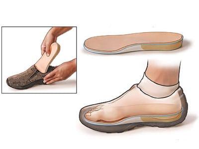 Chaussure avec semelle orthopédie