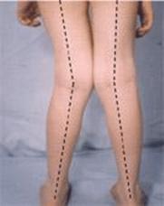 jambe en x orthopédie