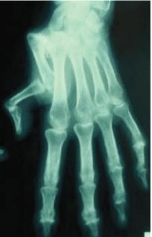 Radiographie d'un pouce en Z*