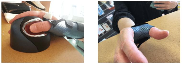 orthèse de fonction arthrose du pouce, rhizartrose