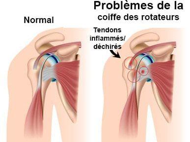 tendinite, tendinites, épaule, douleurs, douleur