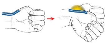 schéma-symptômes-tendinites-de-quervain-douleurs-poignet-pouce
