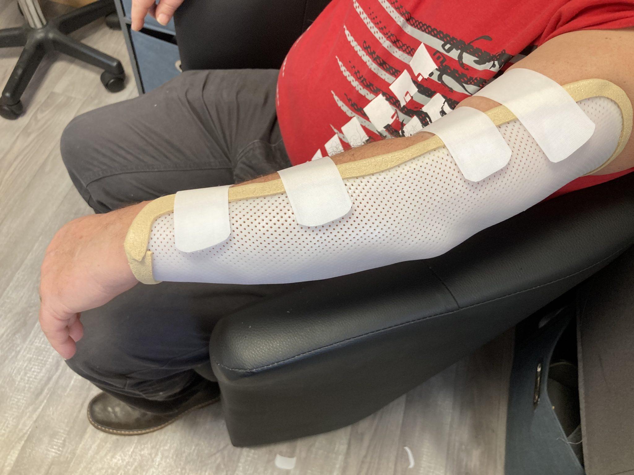 attelle de bras - attelle de coude - orthèse de bras  orthèse de coude  - attelle sur-mesure - orthèse de main - orthèse sur-mesure - orthopédie - sur-mesure