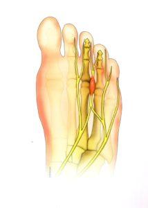 pied-névrome de morton-déformation-podologie-orthopédie