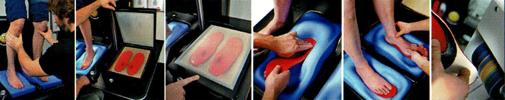 étapes bilan podologique semelles orthopédiques