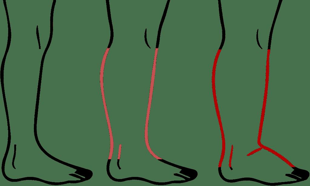 pieds gonflés - pies qui gonflent - soigner pieds qui gonflent - pourquoi les pieds gonflent - jambes gonflées - jambes qui gonflent