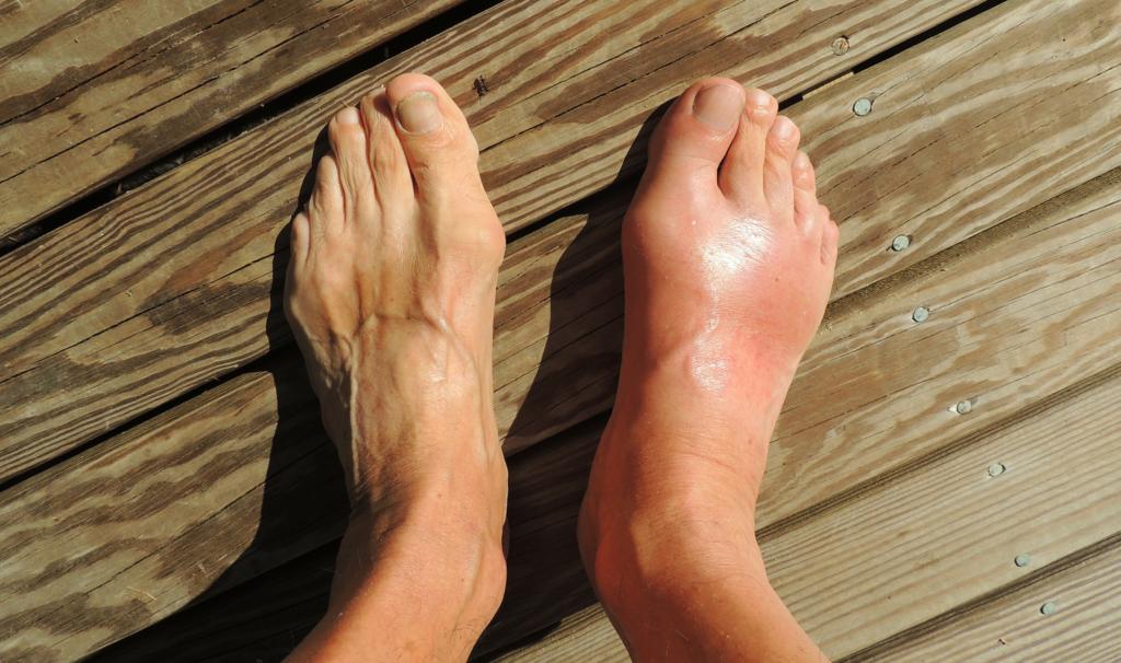 pieds gonflés - pies qui gonflent - soigner pieds qui gonflent - pourquoi les pieds gonflent