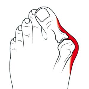 hallux valgus - pieds - douleurs - pieds statiques - problèmes statiques - oignon