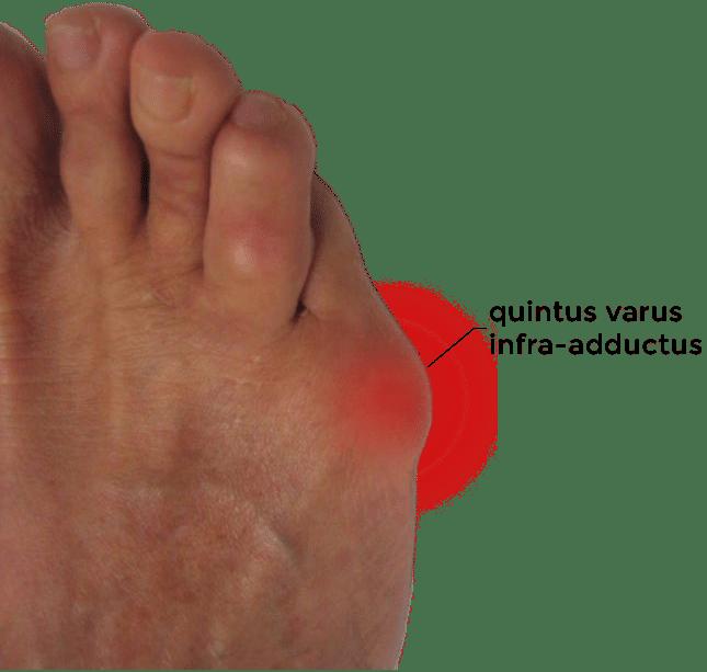 quintus varus - quintus varus infra adductus - photos quintus varus - douleurs quintus varus