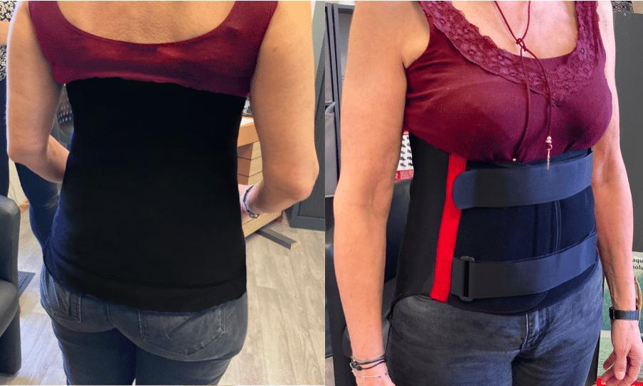 ostéoporose - corset sur-mesure - corset thermoformée - corset semi-rigide - corset ostéoporose