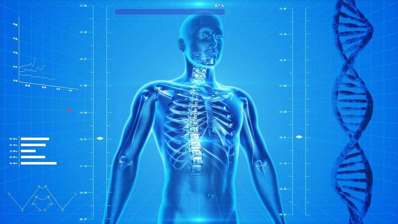 ostéoporose - femme ostéoporose - fractures - douleurs dos