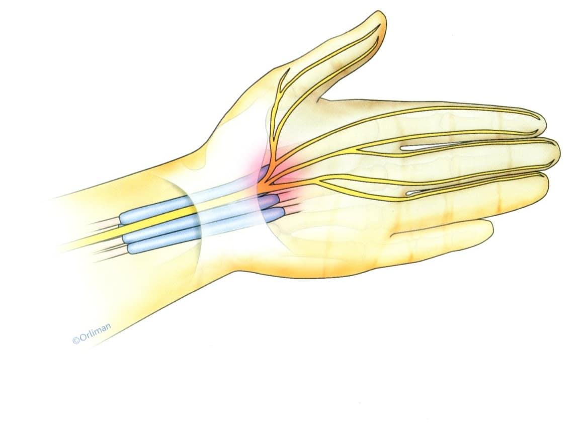 canal carpien - syndrome canal carpien - douleurs - douleurs poignet