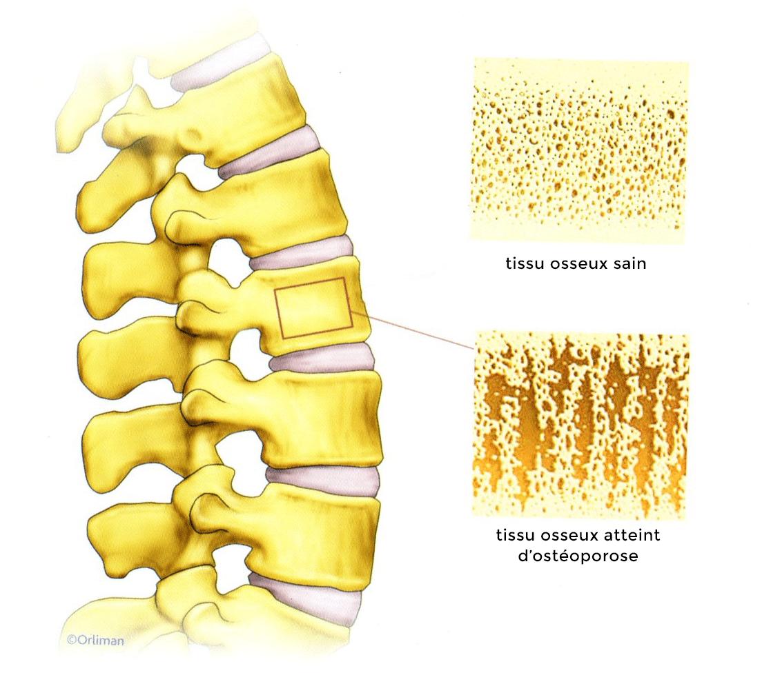 ostéoporose - ostéoporose femme - os fragilisés - fracture - vertèbres
