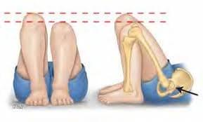 jambe plus courte que l'autre - déséquilibre posture - douleurs posture - douleurs dos - problème hanche