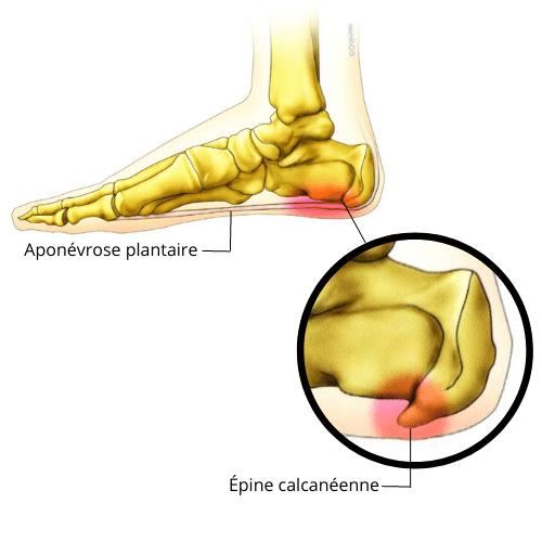 Épine calcanéenne - douleurs talon - douleurs sportif - épine Lenoir - Aponévrose plantaire - aponévrosite plantaire