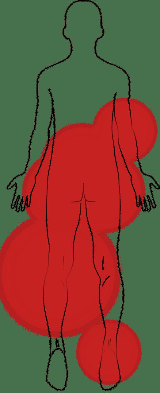 escarre - escarres - escarre au pied - douleurs escarre